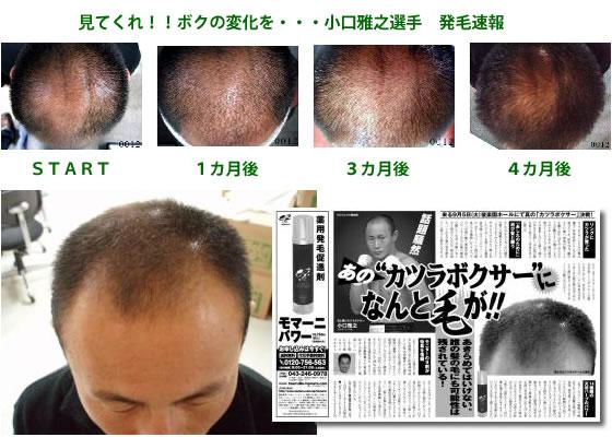 モマーニで発毛した小口選手 かつらボクサーで有名な小口選手も、モマーニによって発毛に成功していま